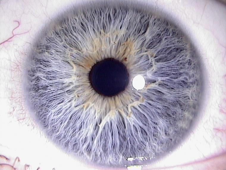 Naturheilpraxis Richard Seling - Augendiagnose